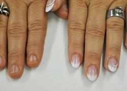 nagelbeiser